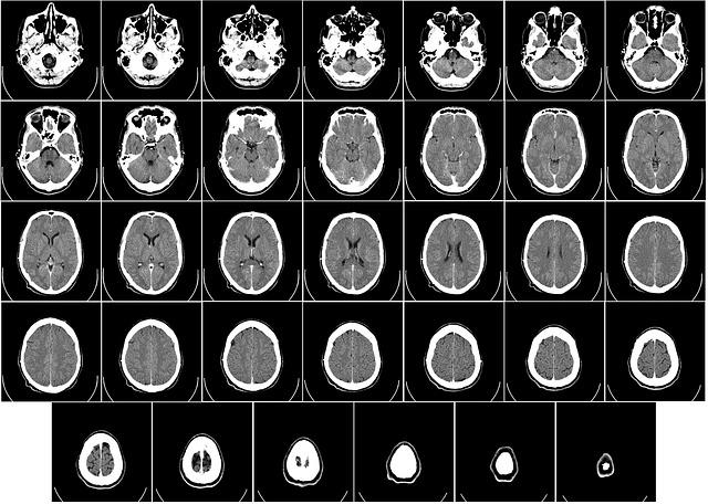 rentgenografie mozku